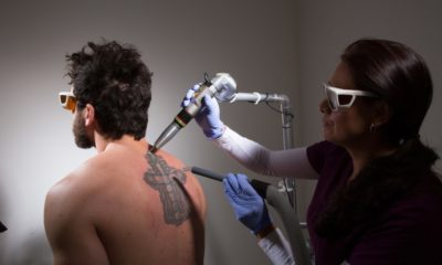 Laser Tattoo Removal Myths