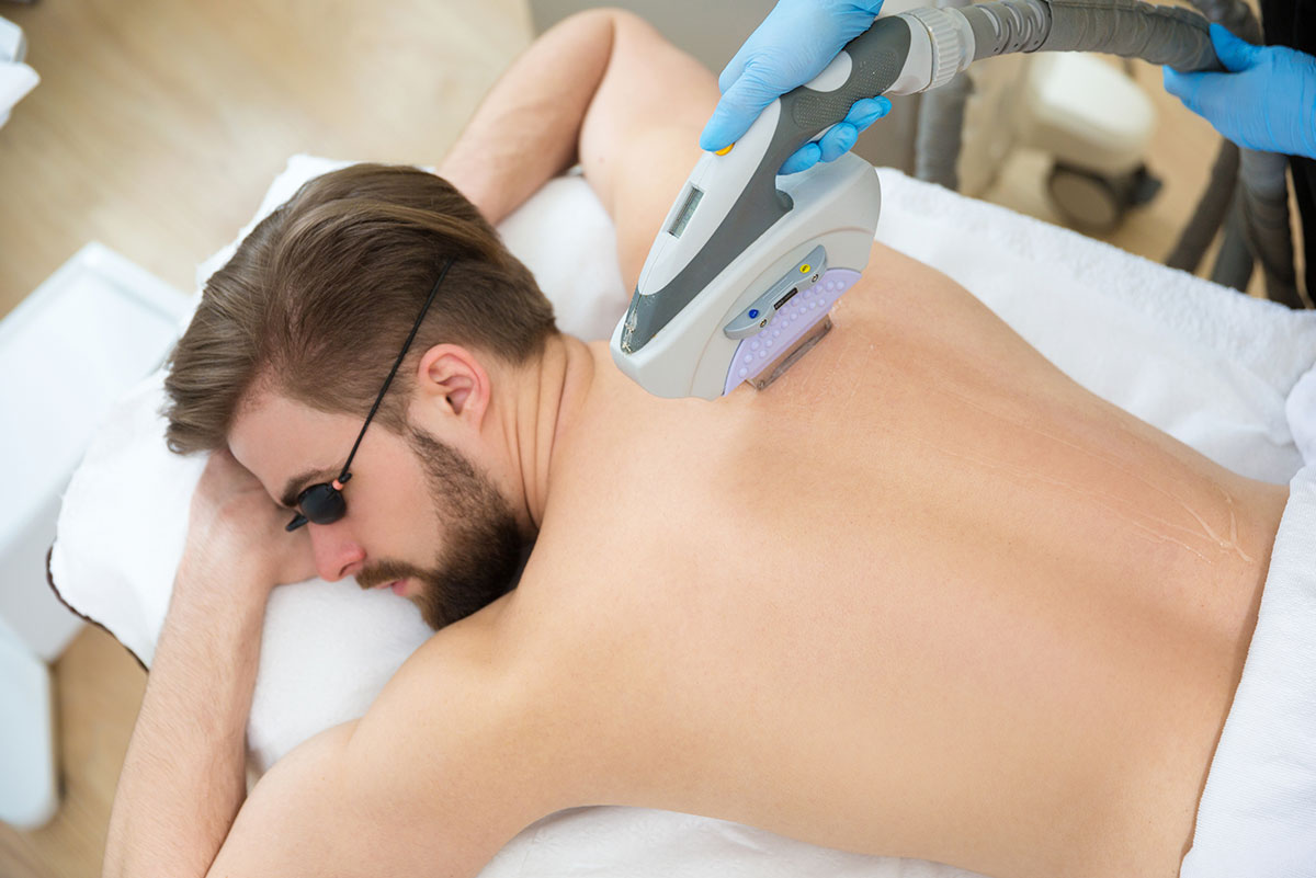 laser removal surgery